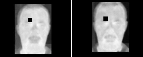 Сравнение одной из зон лица до и после употребления алкоголя.<br>Изображение: Georgia Koukiou et al. / Forensic Science International